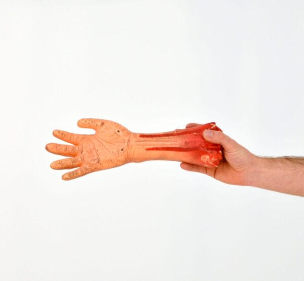 Severed hand with blood stained wrist